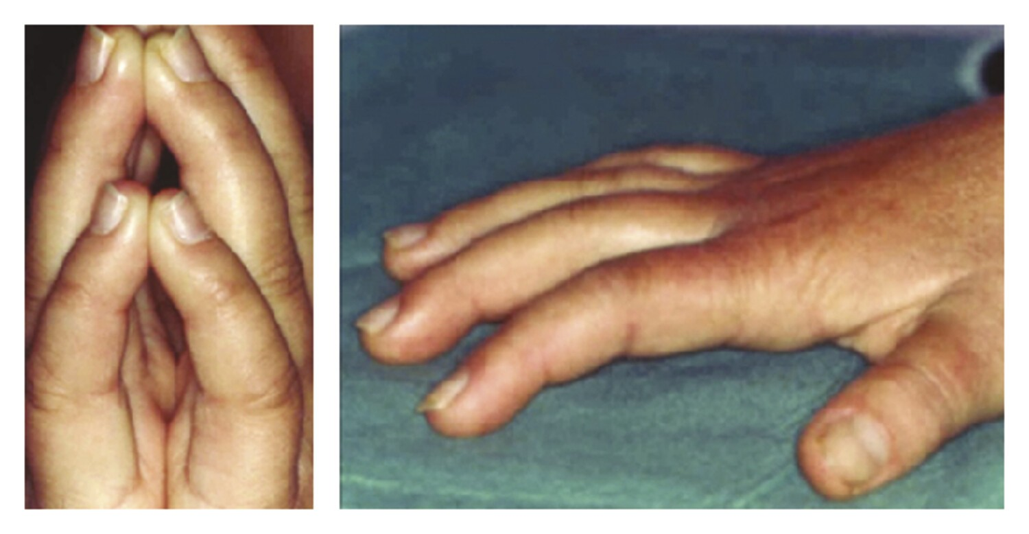 La main diabétique  - Figure 2