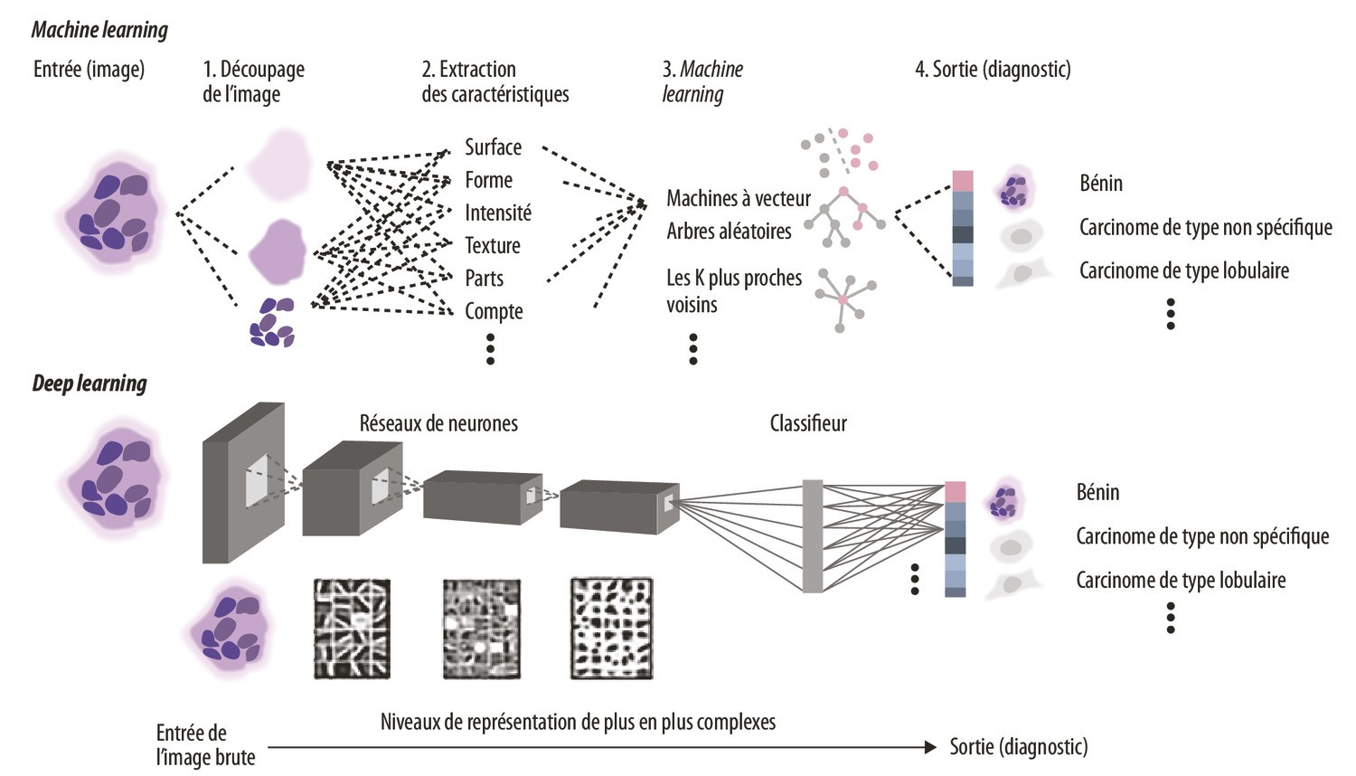 La pathologie à l'heure de l'intelligence artificielle : exemple de la pathologie mammaire - Figure 1