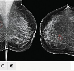 Intelligence artificielle en mammographie et dépistage du cancer du sein - Intelligence artificielle en mammographie...