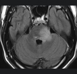 Un syndrome pyramidal atypique-Axial FLAIR