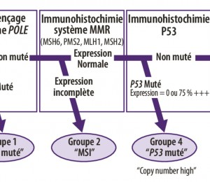 Classification des carcinomes de l'endomètre - Figure 1