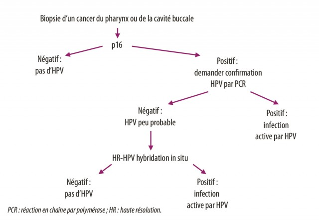 Hpv homme gorge. Hpv homme gorge