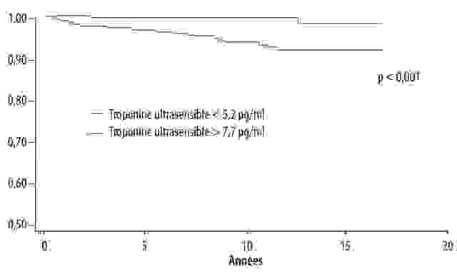 Polyarthrite rhumatoïde : aspects cliniques - Figure 6